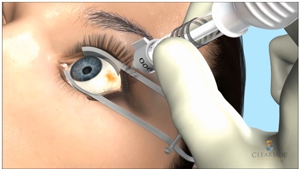 Using AN ocular injection platform to deliver drug to the SCS, Clearside is pursuing treatments for blinding diseases with a late-stage pipeline for macular edema associated with uveitis and retinal vein occulusion and DME, as well as an early development program for wet AMD