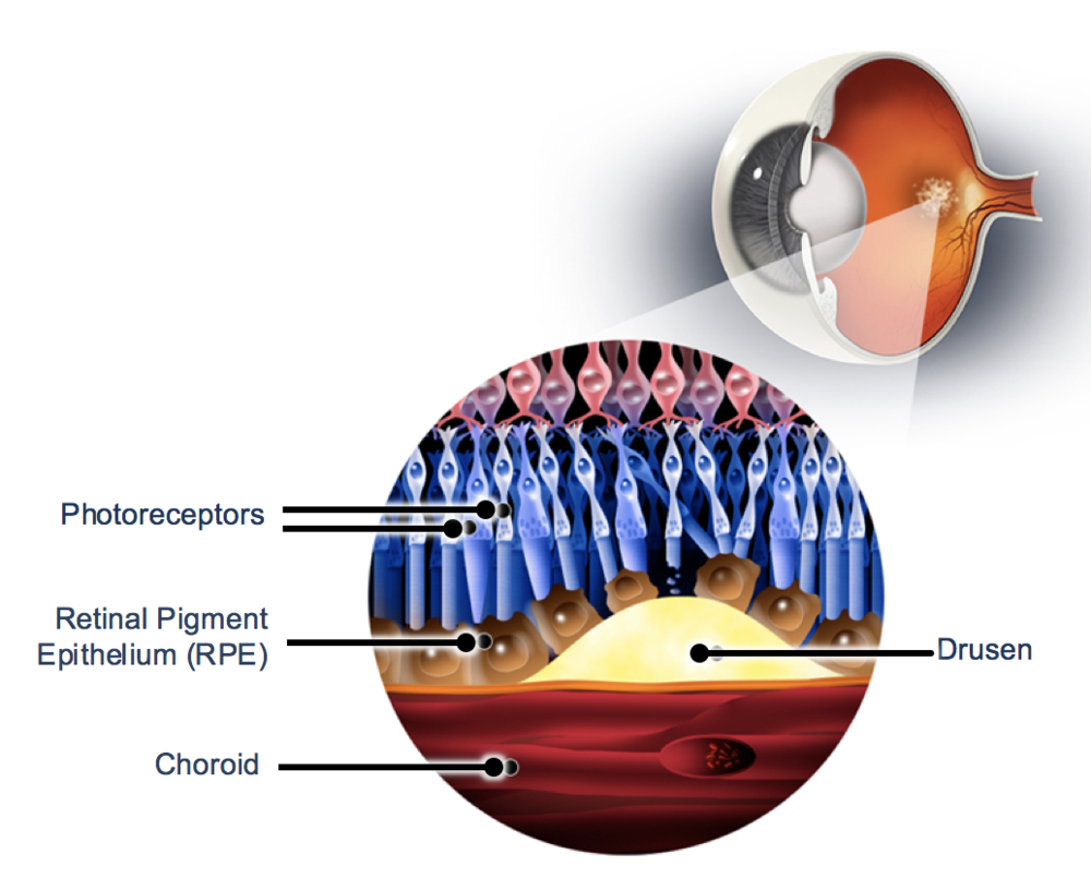 OpRegen cells are introduced into the subretinal space where they are designed to replace retinal pigment epithelial (RPE) cells lost due to disease