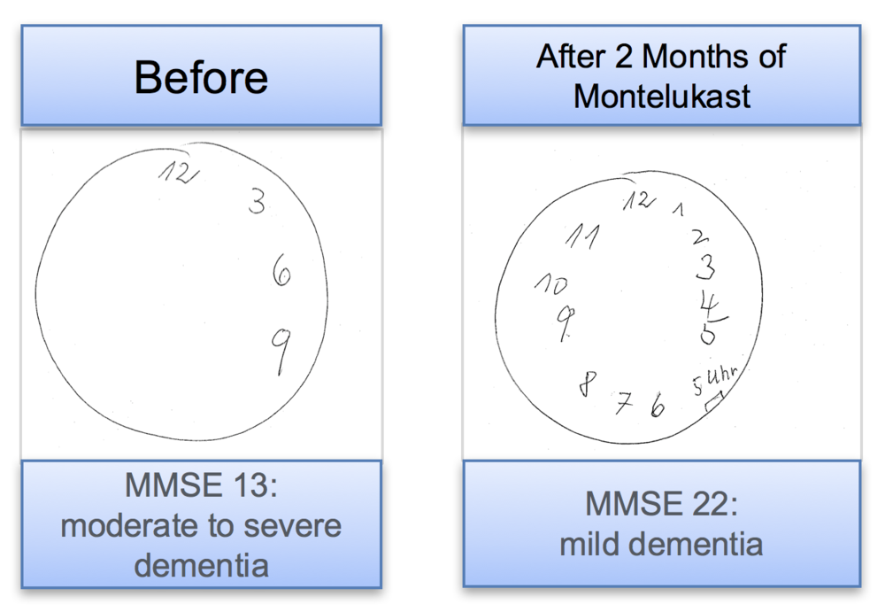 the company has successfully completed a Phase 1 study with Montelukast VersaFilm and seen remarkable anecdotal evidence that a patient with a diagnosis of moderate-to-severe dementia Could return to mild dementia after two months of treatment