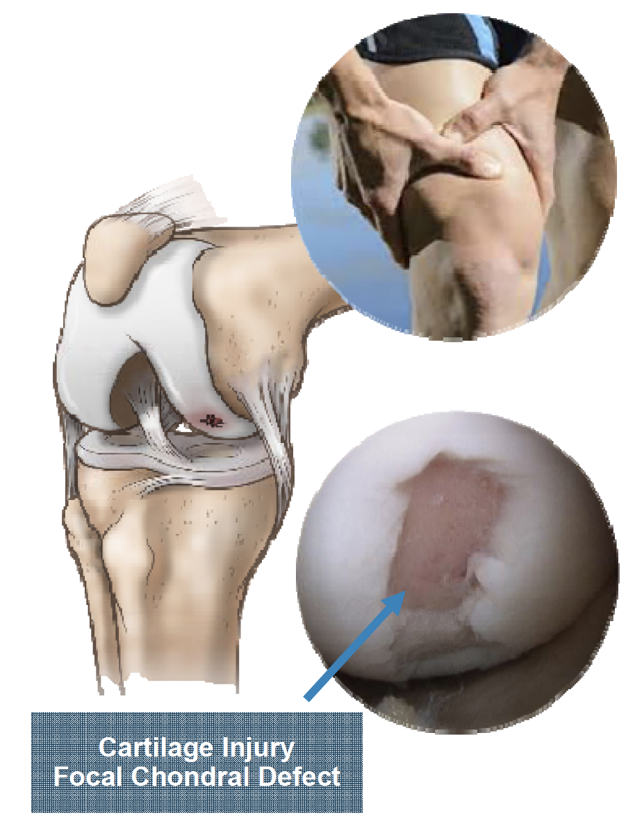 according to lieber, Cartilage injury causes pain and loss of function, leading to lengthy unsatisfactory surgeries, or debilitating conditions later in age