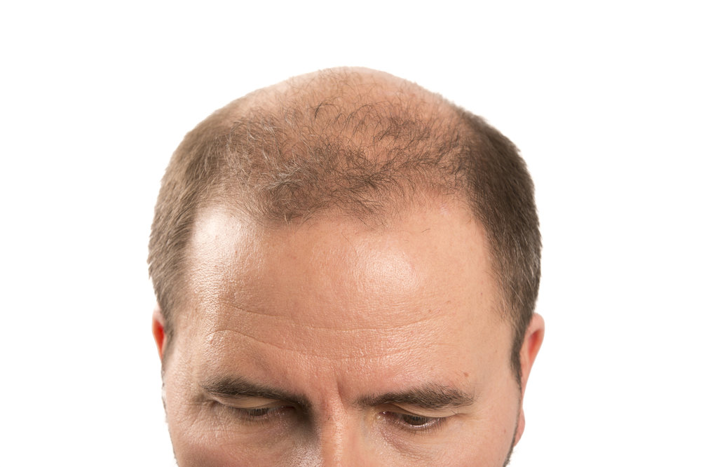 Replicel Hair Loss Cure Release Date | Hairsview co
