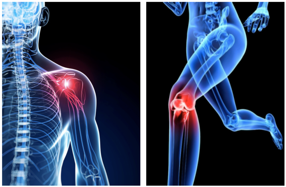 In addition to shoulder rotator cuff repair, the company is developing technology for knee meniscus and articular cartilage repair, and other commonly injured joints, such as the elbow, ankle and hip