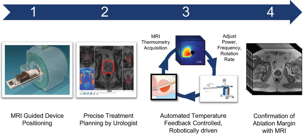 Precise & Personalized Ablation of Prostate