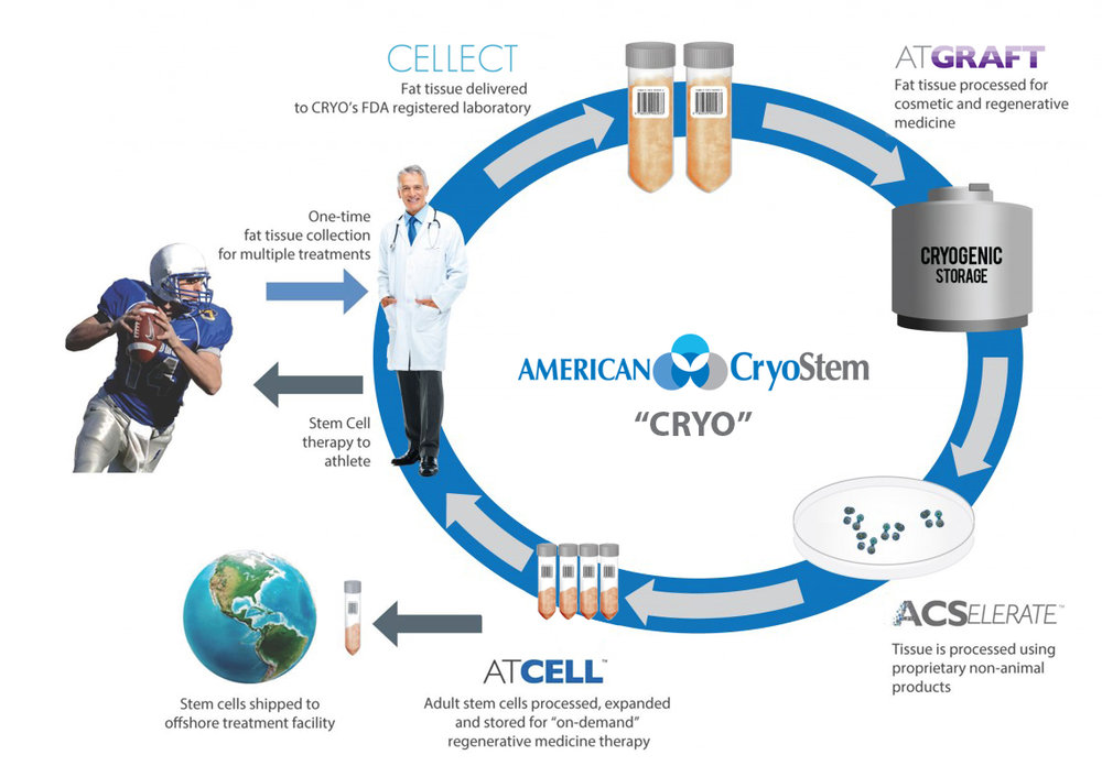 American CryoStem provides end-to-end commercial adipose solutions beginning with CELLECT, a validated tissue collection and transportation system for a fat tissue sample collected by a physician. The tissue is sent to the company's lab, where it is processed to an ATGRAFT sample that can be processed, stored and retrieved for use as natural fillers for cosmetic procedures.
