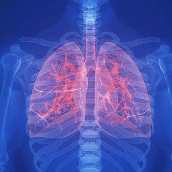 cancer-lung-184129429.jpg