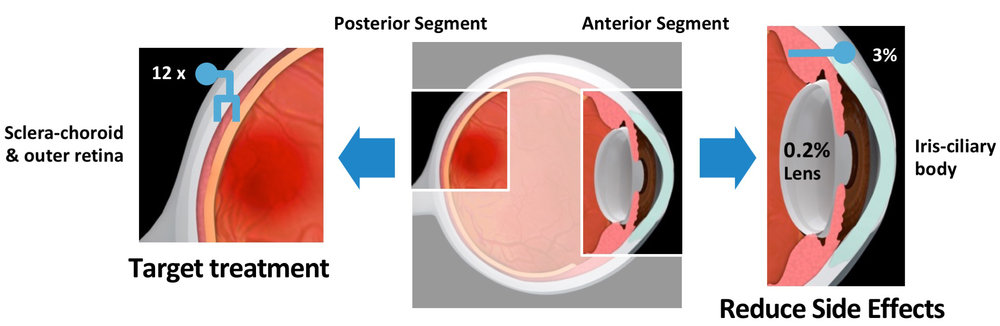 Precise Access to the Back of the Eye Through the SCS