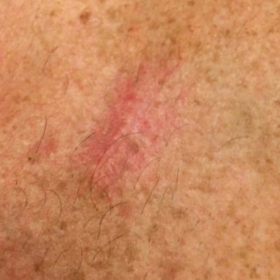 One month after ScarlessMD treatment began.