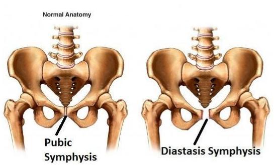IMAGE of Symphysis Pubis Dysfunction (SPD): http://anterior-hip-surgery.com/pelvic-injuries/pubic-symphysis-diastasis/