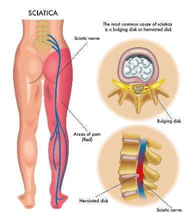 IMAGE of Sciatica (and Disc/Disk Herniation): http://steamspoils.com/sciatica-sos-review