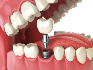 Single tooth implant.