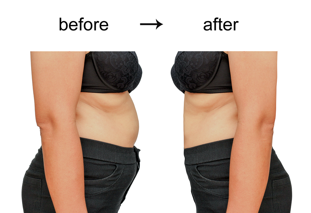 cellulite arms2.jpg