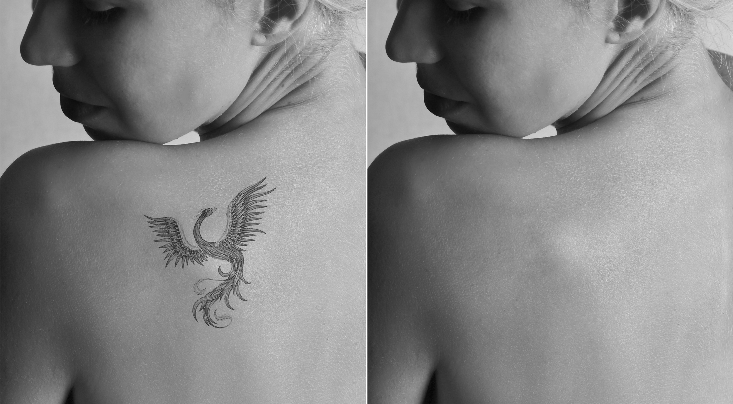 9ece849701782 Tattoo Removal — The Getaway Spa