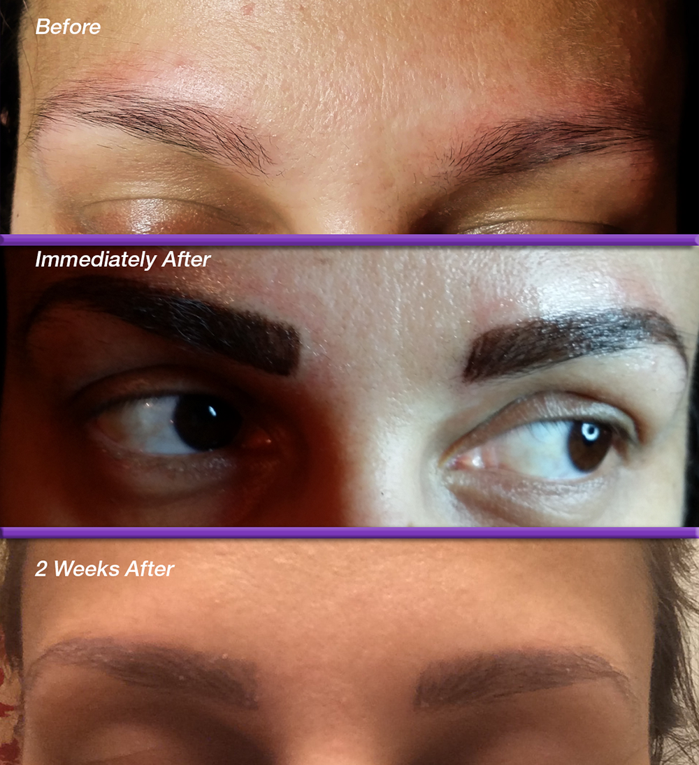 Brows-Before_After5.png
