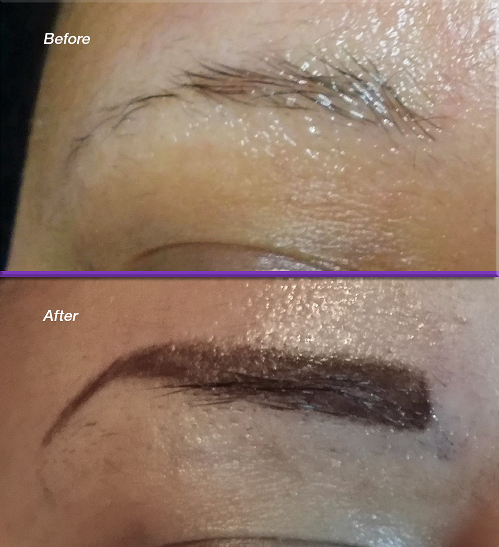 Brows-Before_FILL.png