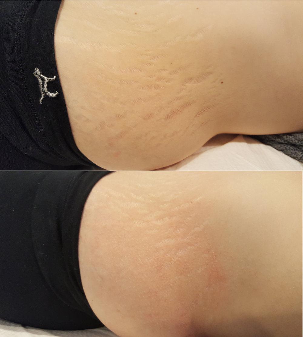 stretch marks.jpg
