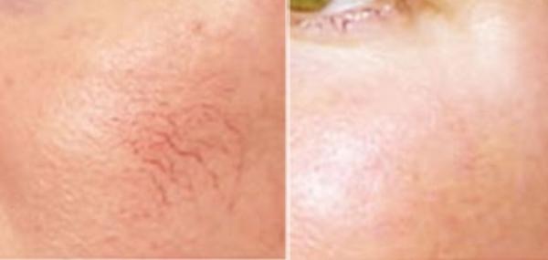 selston-clinic-spider-veins-1.jpg