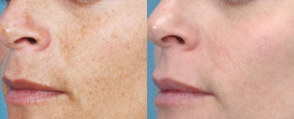 Skin365_IPL-Photofacial.jpg