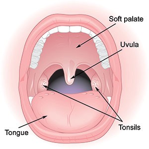 Look for clear spots or streaks of white pus on your tonsils (credit: myclevelandclinic.org).