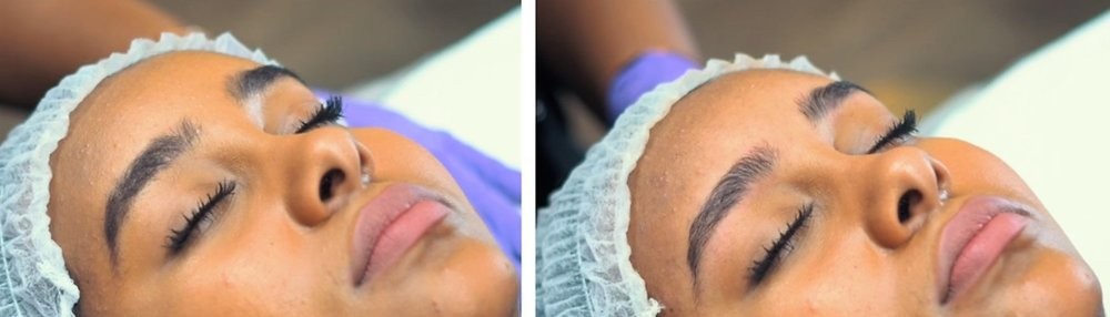 Brow Relax before and after.jpg