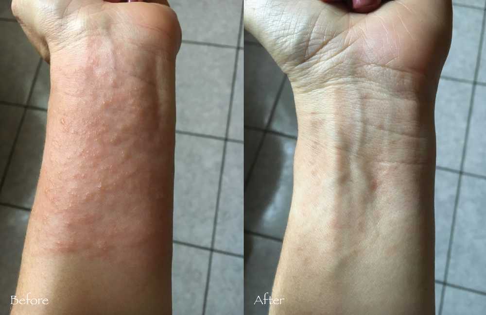 How natural skin care products can help with a rash. Before and after Rescue Me Body Butter