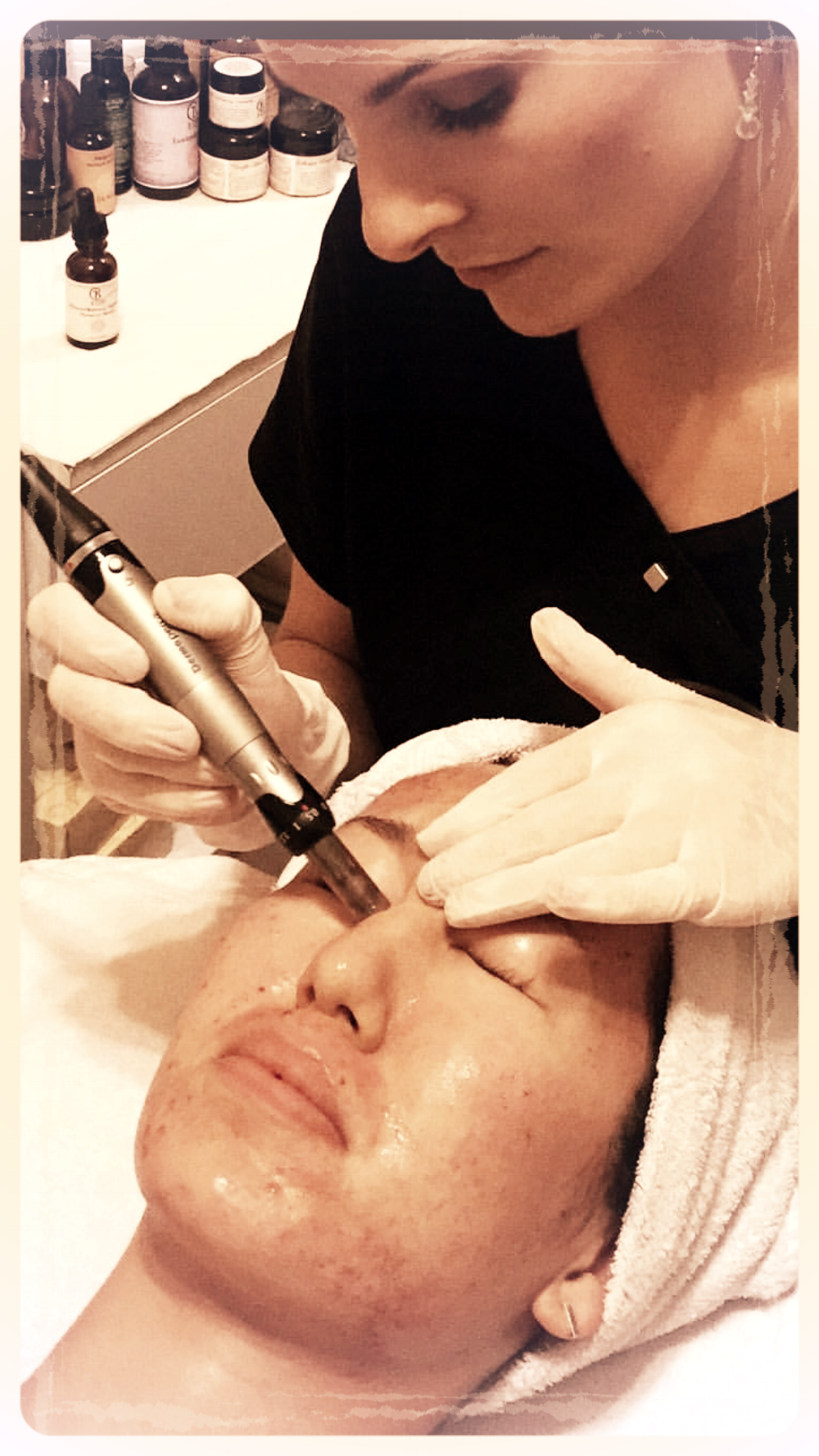 DermaPen (micro-needling) is the most effective and the best skin care treatment for wrinkles, acne scars, scars, skin tightening, hyperpigmentation