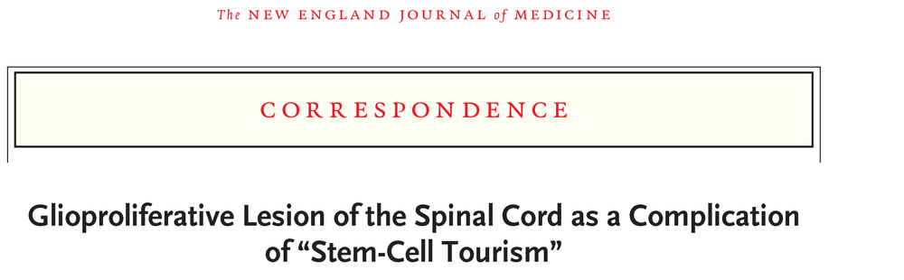 Glioproliferative Lesion (Tumor) of the Spinal Cord as a Complication of Stem Cell Therapy