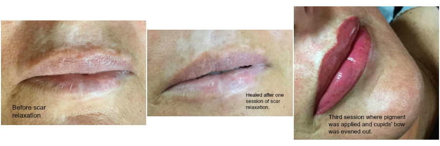 scar relaxation and permanent makeup lip color