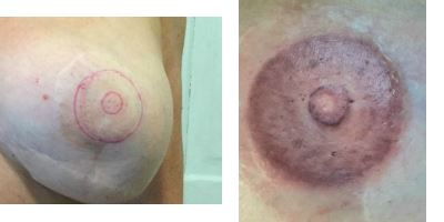 Areola nipple tattooi by terry lively