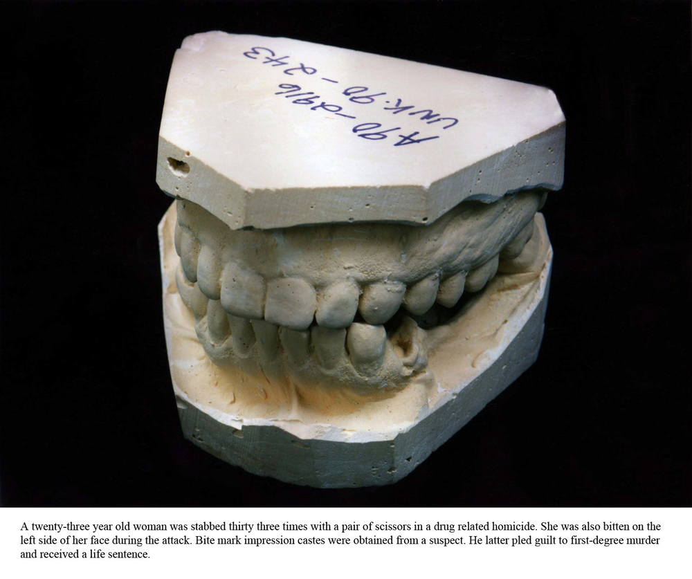 Statement    Dental Impression