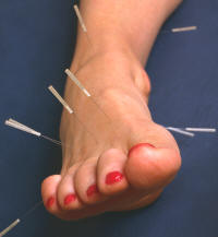 """Acupuncture is a very ancient form of healing that predates recorded history.""    History of Acupuncture"