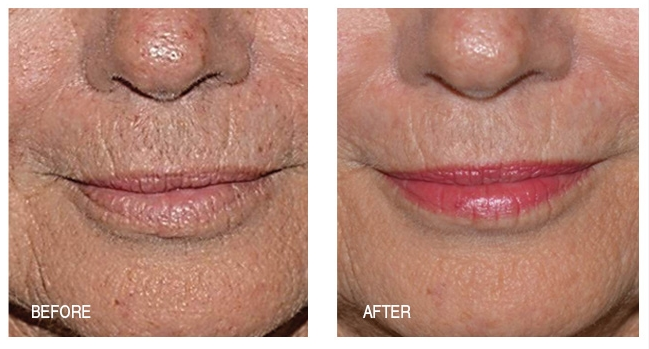 Anti-Aging lips & mouth after only 2 weeks of Anti-Aging System use.
