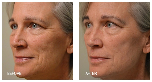Lines are refined, age spots are reduced and skin is tighter after just two weeks of the three step Anti-Aging System.