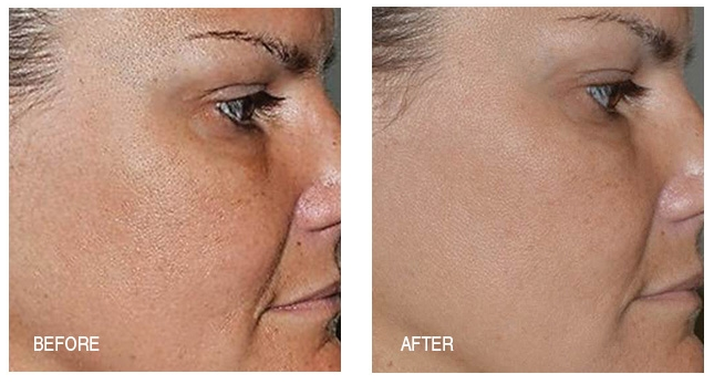 Reduction in pore size, sun and color spots are shed and skin smoothing is obvious after just two weeks of using the Anti-Aging System.