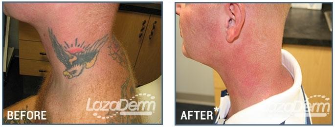Tattoo side neck.jpg