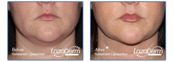 Tumescent Liposuction Under Chin 1