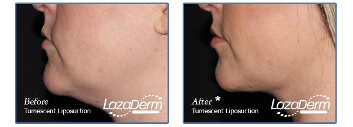 Tumescent Liposuction Under Chin 2