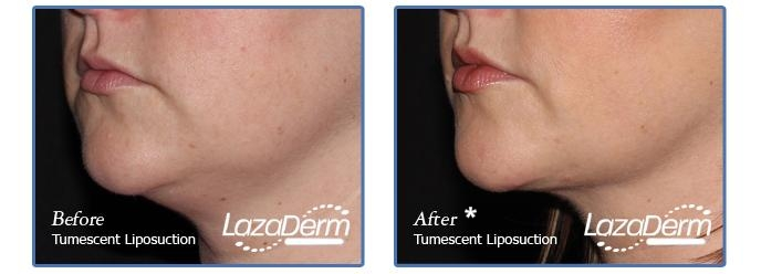 Tumescent Liposuction Under Chin 3
