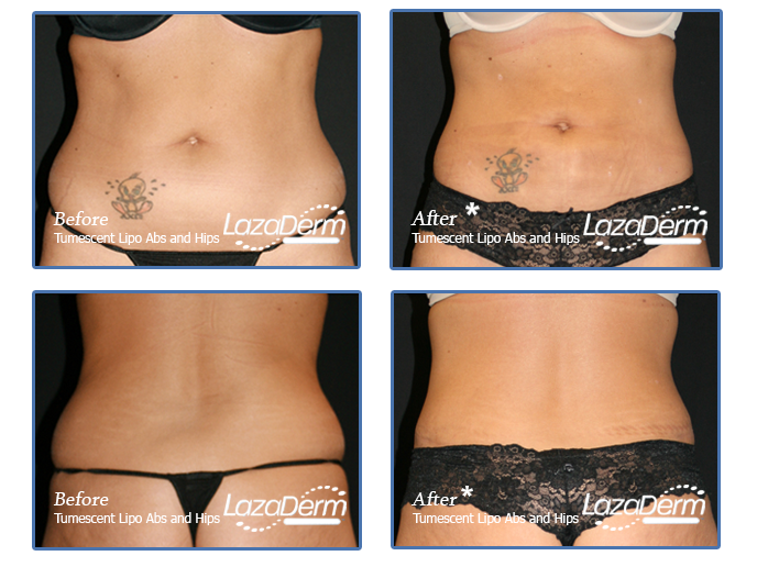 Tumescent Lipo Abs and Hips