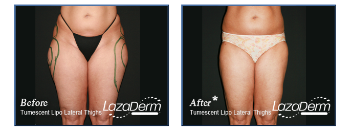 Tumescent Lipo Lateral Thighs