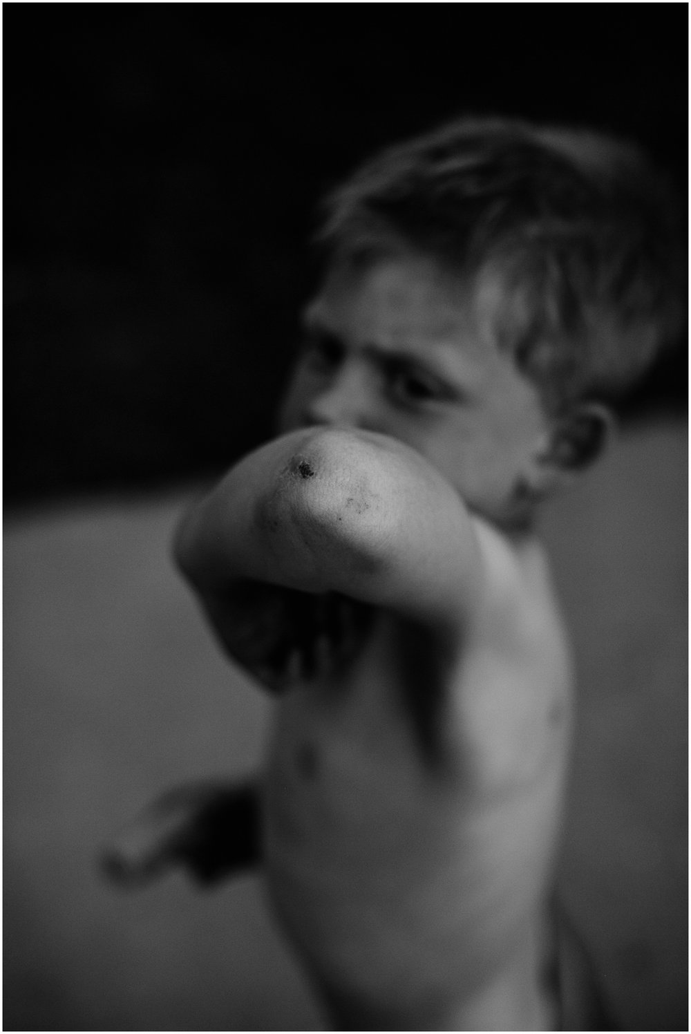 Milwaukee Lifestyle Photographer | Documentary photography of young boy's childhood | Scrapes and scars.