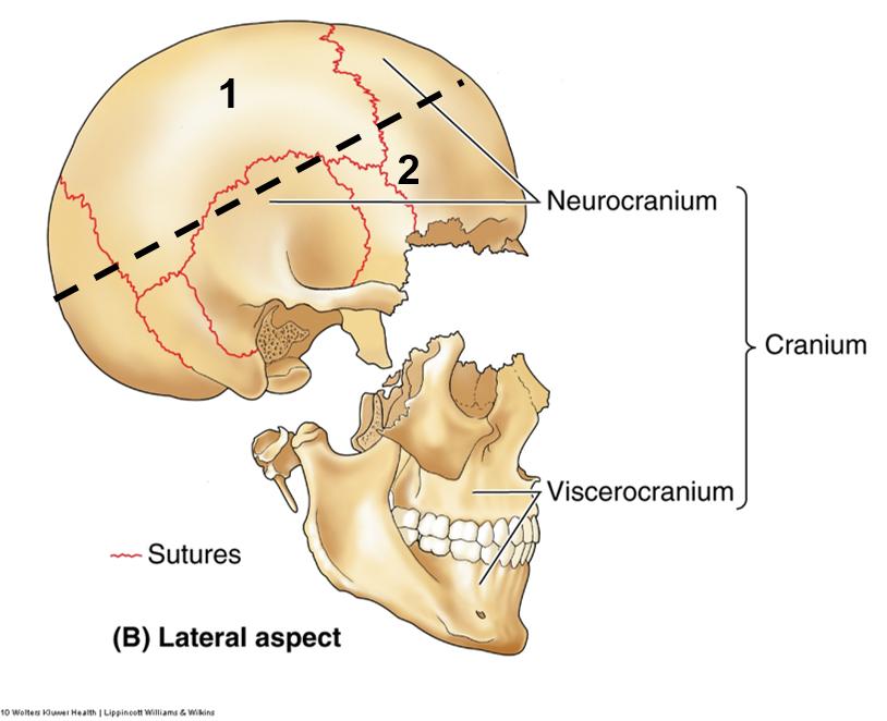 cranium-14368F831BE78AF97D1.png