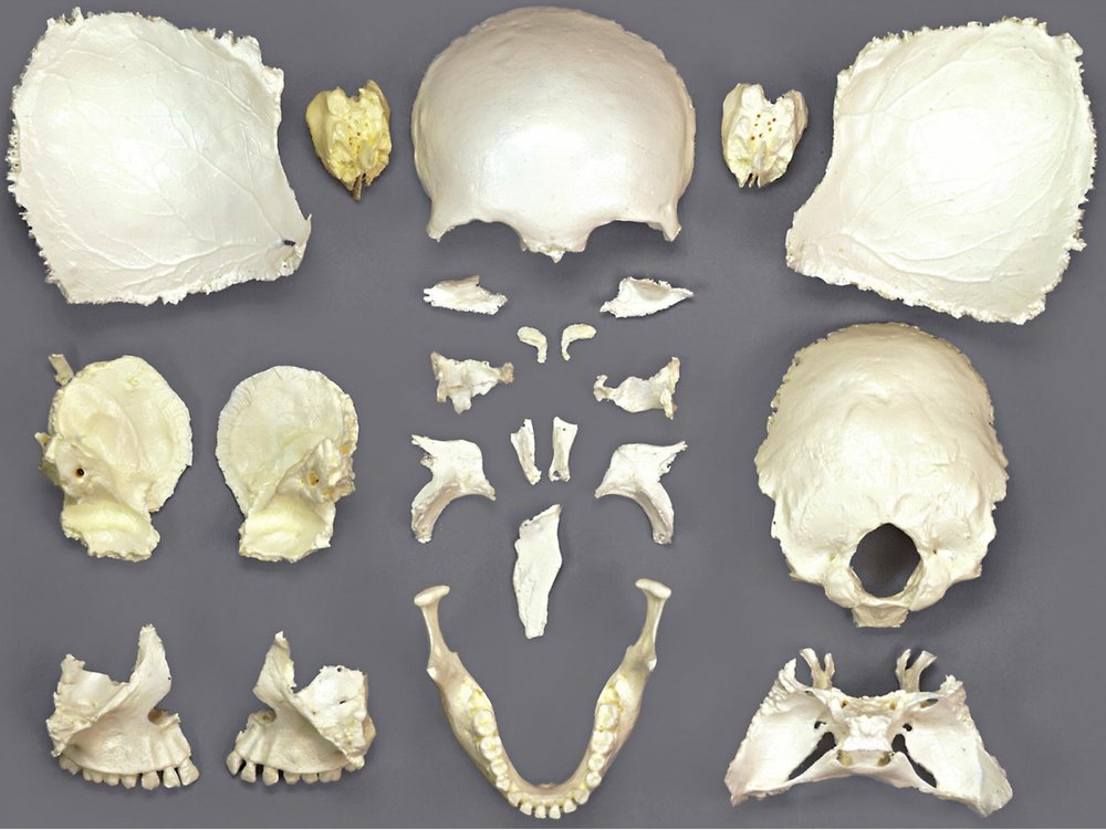 osm32p_disarticulated-female-skull.jpg