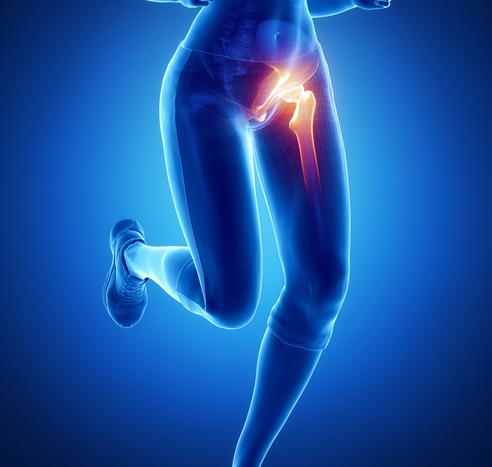 Alternatives to Hip Replacement Surgery — Regenerative