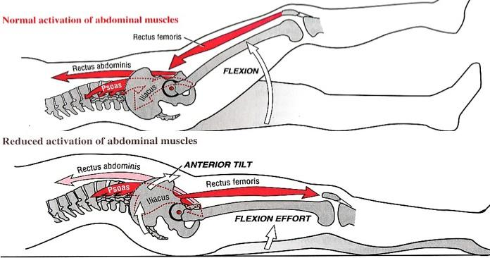 Shirley Sahrmann  was the first to emphasize the importance of relative stiffness ( image source )