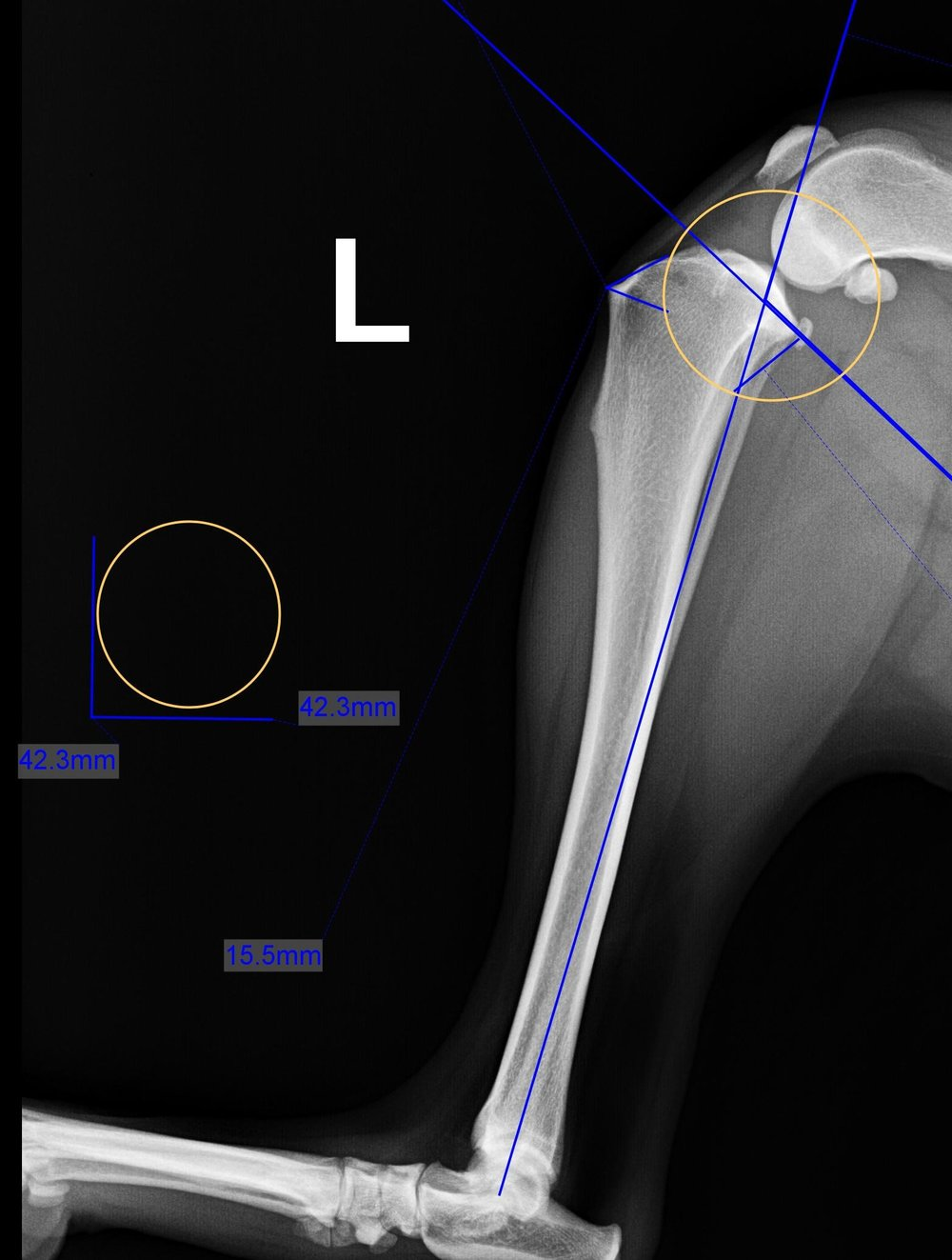 TPLO Lateral Preop Planning.jpg