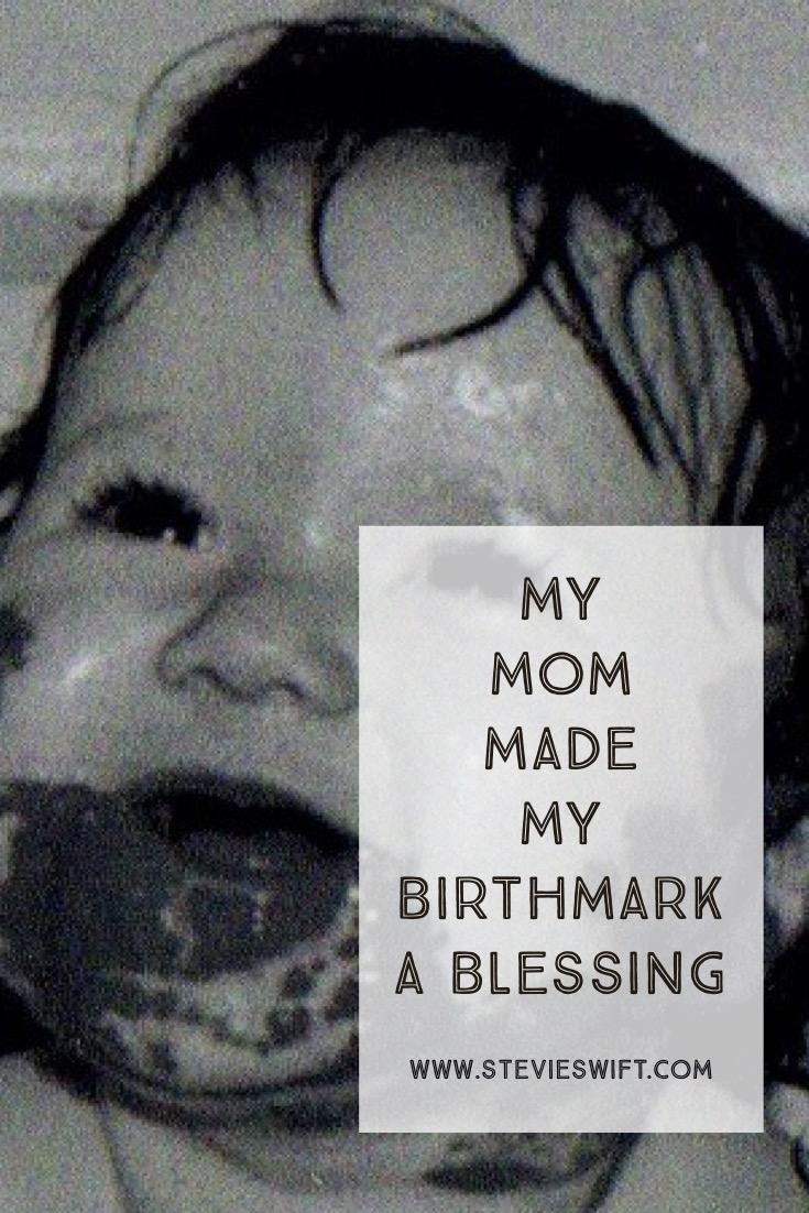 How My Mom Made My Birthmark A Blessing