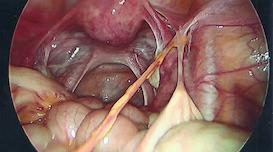 uterus-adhesion