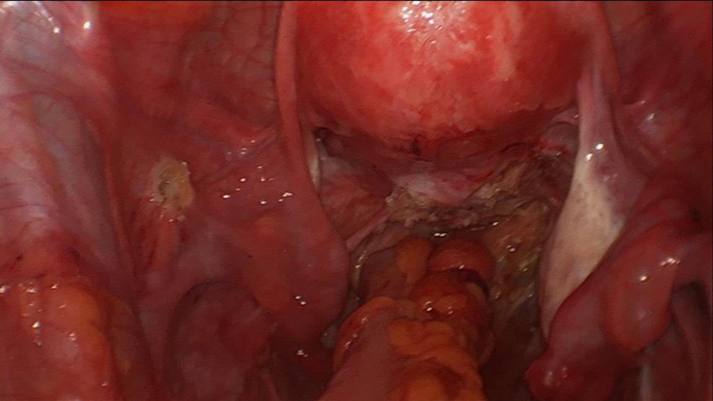 normal _bowel