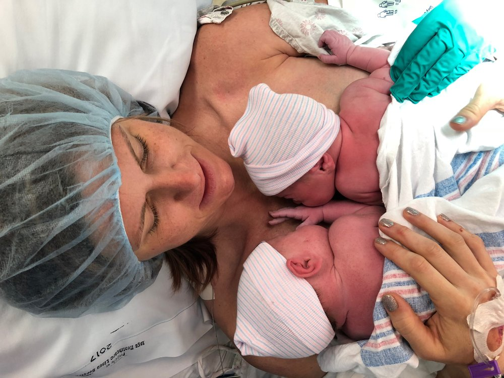 Laura delivered her twins vaginally (the policy is to do this in the OR) and tandem nursed them right away thanks to some great docs and nurses who helped them get situated.