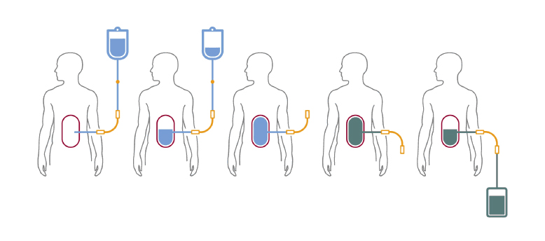 Peritoneal Dialysis Finding A Living Donor